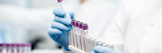 Gloved hands holding laboratory test tubes
